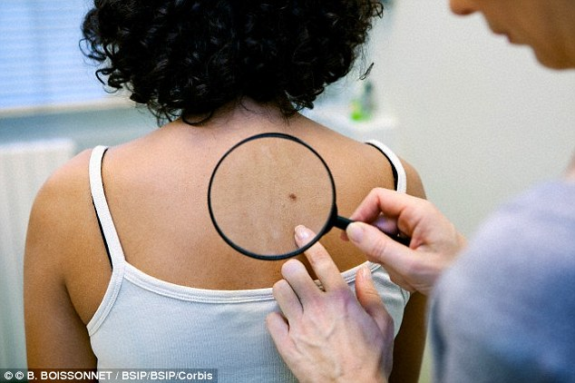 Cancer Symptom : Do you know How to Check if a Mole is Deadly?